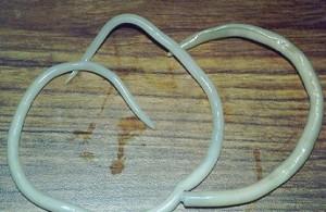 круглые черви аскариды