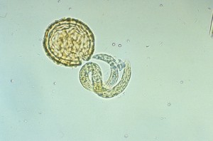 личинка аскариды, освободившаяся от скорлупки яйца